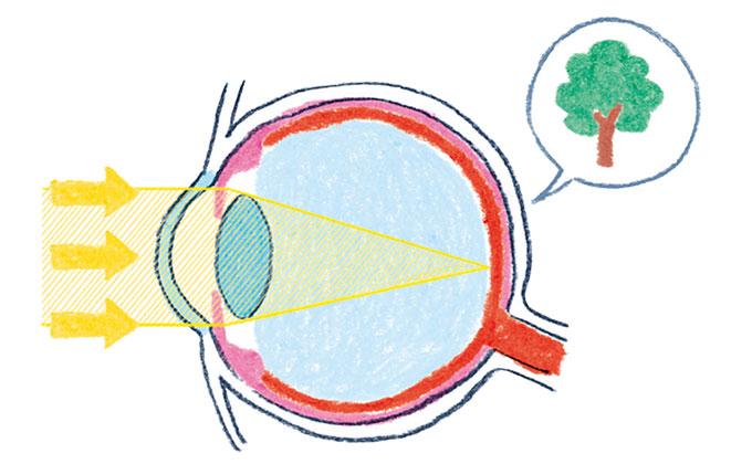 近視などの異常は、早い対応がカギ【子どもの目を守る!・2】