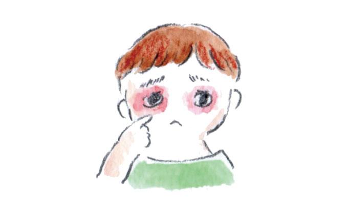 子どもの肌トラブルレスキュー!こんな症状が出たらどうしたら良い?~後編~